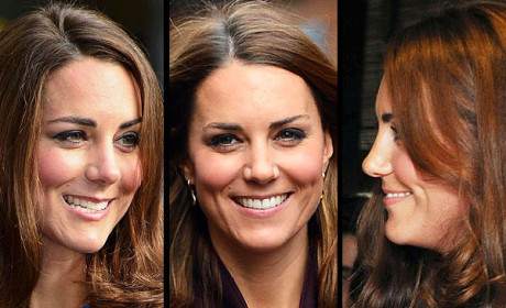 Kate Middleton: Plastic Surgery Inspiration!