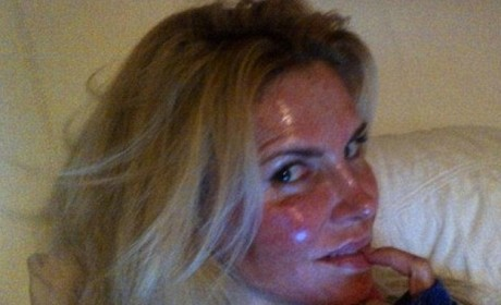 Brandi Glanville's Burned Face: What Happened There?