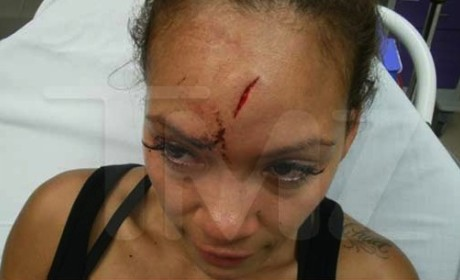 Evelyn Lozada Bloody Head