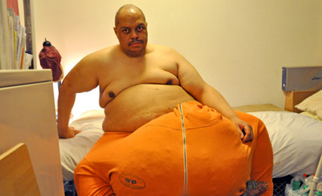 Man With 132-Pound Scrotum Lands TLC Series