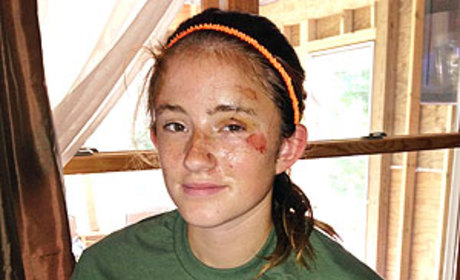Abby Wetherell, 12, Attacked By Bear, Plays Dead, Lives to Tell About It