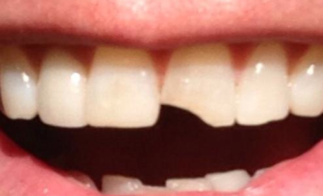 Dumb and Dumber Sequel: Confirmed by Jim Carrey, Chipped Tooth