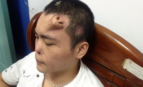 Forehead Nose Grown By Doctors to Replace Chinese Man's Original One