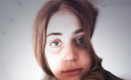 Lady Gaga With No Makeup: WOW!