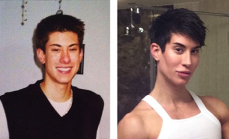 Justin Jedlica Before and After Pics