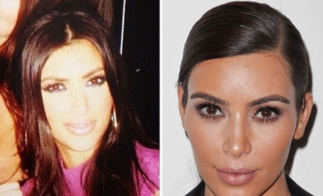 Has Kim Kardashian had plastic surgery?