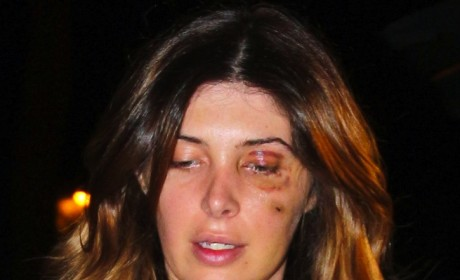 Brittny Gastineau Black Eye Photo