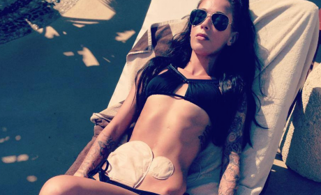 Bethany Townsend, Aspiring British Model, Poses in Bikini with Colostomy Bag
