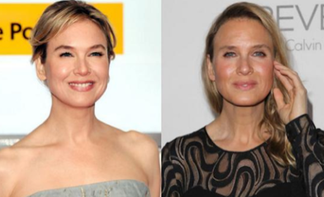 Renee Zellweger Face Transformation: Insecurities Abound, Insiders Say