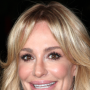 Taylor-armstrong-the-lips