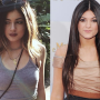 Kylie Jenner Face: Before & After
