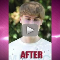 Justin Bieber Fan Gets Plastic Surgery