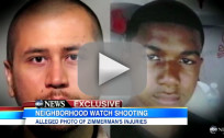 George Zimmerman, Bloody Head