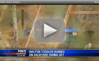 Toddler Burned On Swing Set In Gasoline Fire
