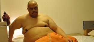 Man With The 132 Lb Scrotum Talks Life with a 132-Pound Scrotum
