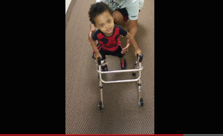 Disabled 2-Year Old Walks for First Time with Prosthetics: Pass the Tissues!