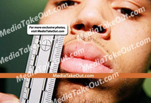 Chris Brown Abuse Photo