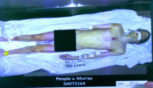 Michael Jackson Autopsy Photo