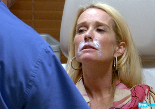 Kim Richards' Face