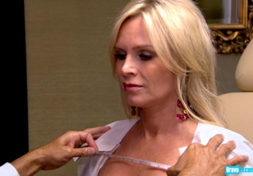 Tamra Barney, Plastic Surgery