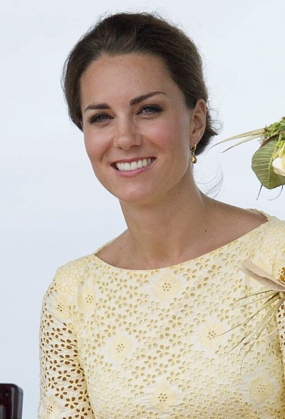 Kate Middleton Teeth