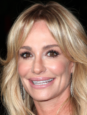Taylor Armstrong: The Lips